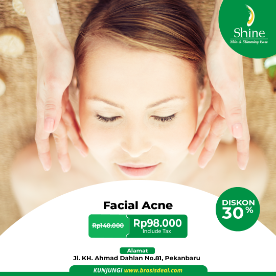 Shine Clinic Facial Acne Deal
